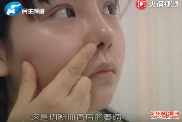 郑州安琪儿医疗整形诱导女子贷款整容 鼻梁透光鼻头凹陷被毁容