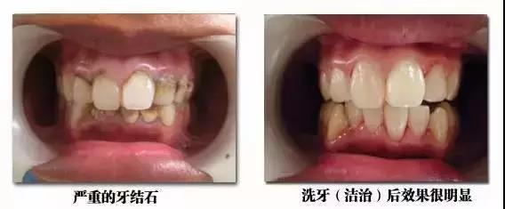 """牙医最怕""""第三者""""你知道吗?"""