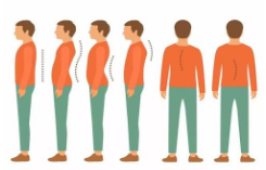 如何预防儿童青少年脊柱侧弯?