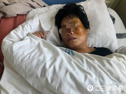 河南鲁山一农妇称遭殴打住院36天仍未破案 警方称:案件正在依法调查