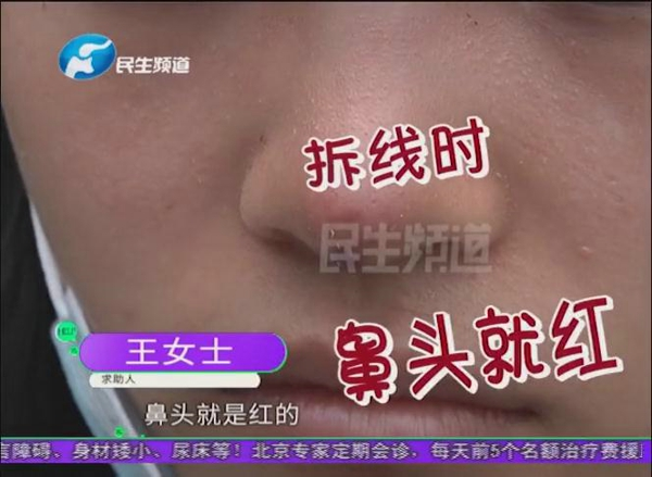 """""""朋友说我是一只米老鼠"""" 郑州一女子在幻颜整形医院整鼻后鼻头发黑发紫"""
